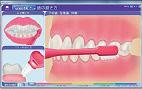 歯の磨き方の図