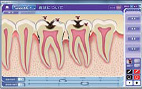 むし歯、歯周病の進行度合いの図